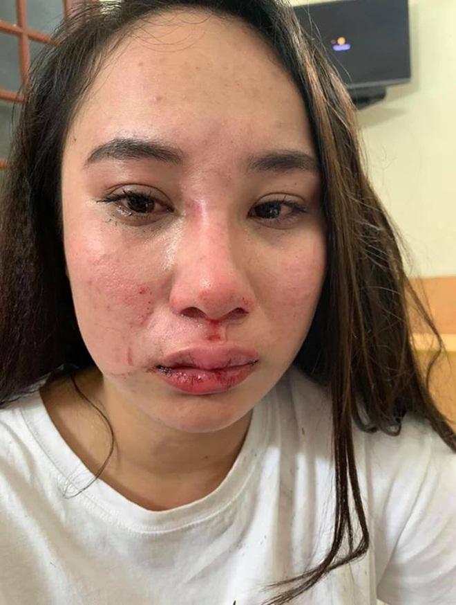 Cô gái bị đánh ghen ở Bà Triệu công khai vết thương, khẳng định oan ức và yêu cầu đưa bằng chứng con giáp 13-2