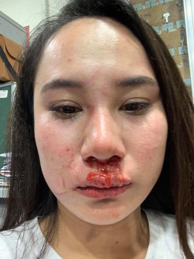 Cô gái bị đánh ghen ở Bà Triệu công khai vết thương, khẳng định oan ức và yêu cầu đưa bằng chứng con giáp 13-4