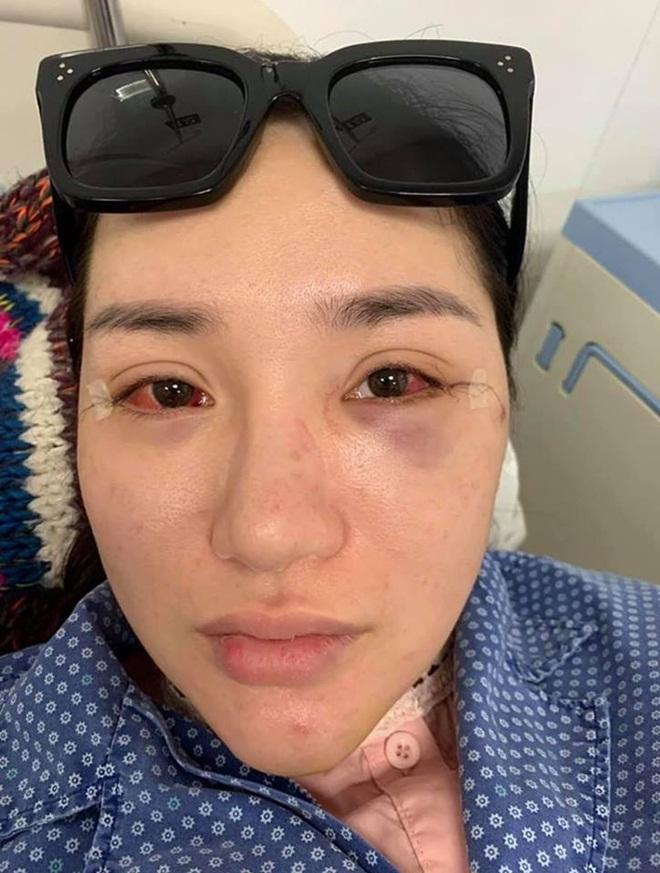 Cô gái bị đánh ghen ở Bà Triệu công khai vết thương, khẳng định oan ức và yêu cầu đưa bằng chứng con giáp 13-6