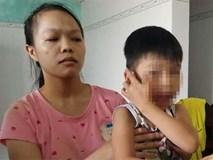 Phụ huynh tố cáo giáo viên đánh học sinh mẫu giáo chấn động não