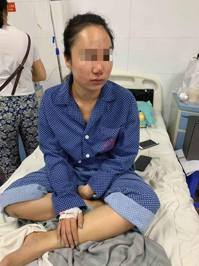 Vụ cô gái trẻ bị đánh, lột quần áo giữa phố: Nạn nhân hoảng loạn, đang điều trị tại bệnh viện-2