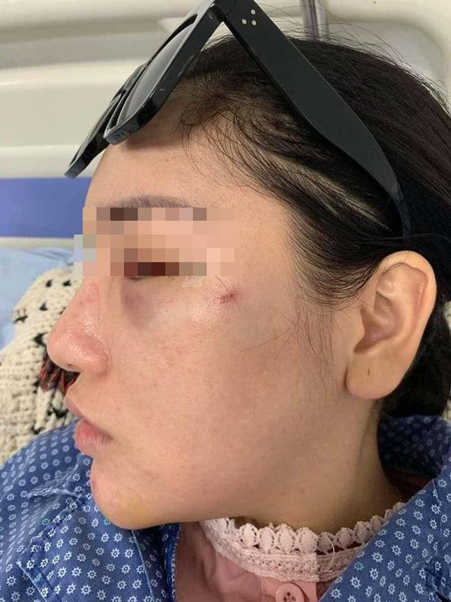 Vụ cô gái trẻ bị đánh, lột quần áo giữa phố: Nạn nhân hoảng loạn, đang điều trị tại bệnh viện-3