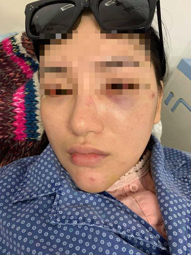 Vụ cô gái trẻ bị đánh, lột quần áo giữa phố: Nạn nhân hoảng loạn, đang điều trị tại bệnh viện-4