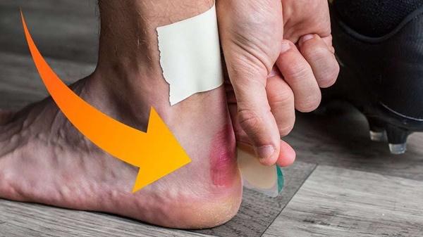 Cẩn thận với 6 dấu hiệu khác thường ở bàn chân đang ngầm cảnh báo bệnh-1