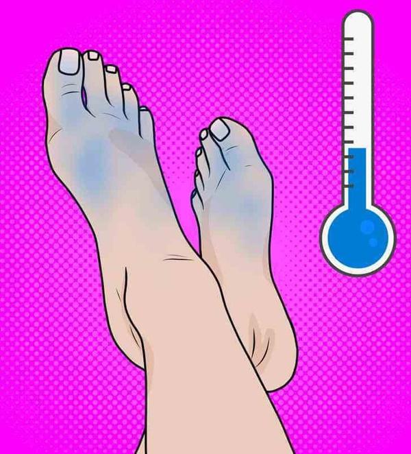 Cẩn thận với 6 dấu hiệu khác thường ở bàn chân đang ngầm cảnh báo bệnh-2