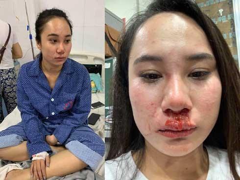 Cô gái bị đánh ghen, lột đồ ở Hà Nội: Do cạnh tranh bán hàng online?-2