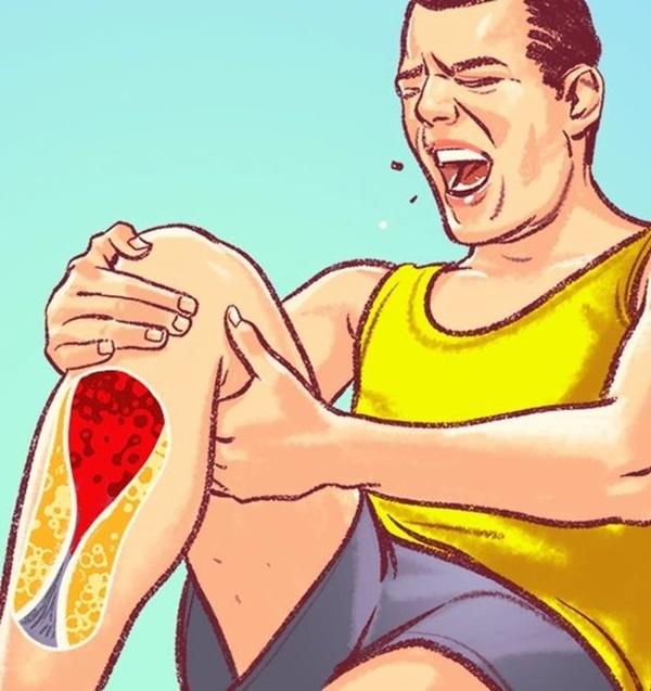 Dấu hiệu nguy hiểm cảnh báo tắc nghẽn động mạch-1