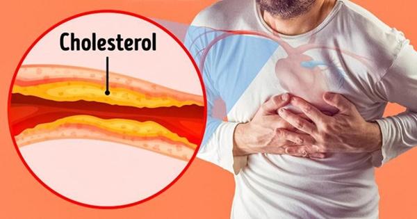 Dấu hiệu nguy hiểm cảnh báo tắc nghẽn động mạch-2