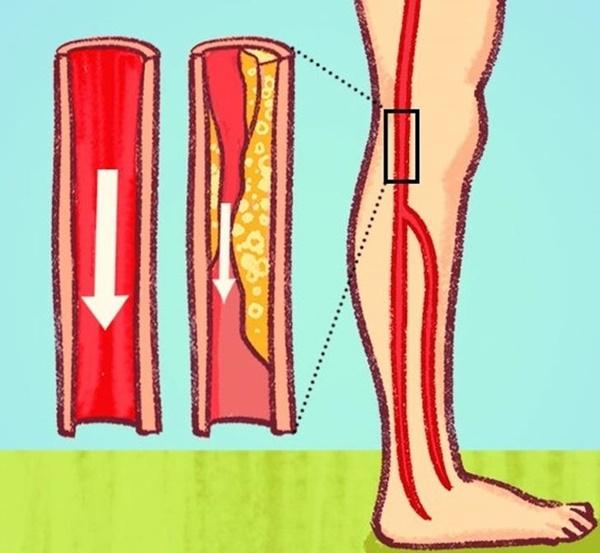Dấu hiệu nguy hiểm cảnh báo tắc nghẽn động mạch-6
