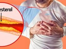 Dấu hiệu nguy hiểm cảnh báo tắc nghẽn động mạch