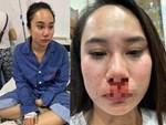 Nữ tài xế taxi tố bị bảo vệ bệnh viện dùng tuýp sắt đánh rách đầu-3