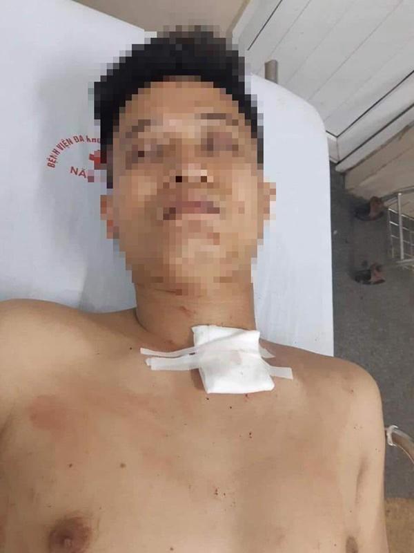 Nam thanh niên đâm cô gái hàng chục nhát ở Ninh Bình là tài xế Grab, chưa có tiền án tiền sự-2