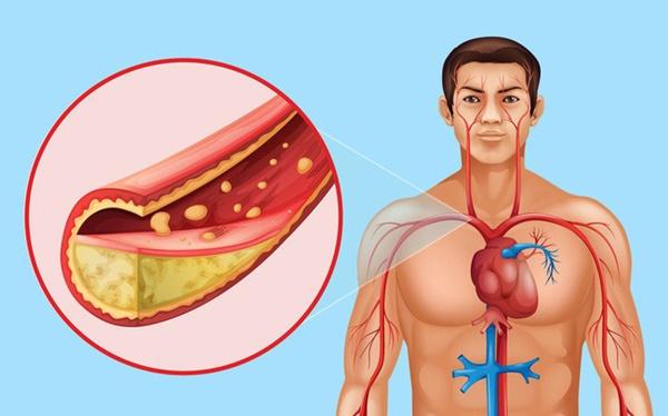 8 điều có thể xảy ra với cơ thể nếu bạn đều đặn ăn hạt lanh mỗi ngày-6