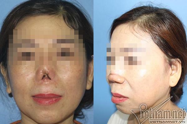 Mũi quý bà Sài Gòn cụt lủn sau nâng mũi tại thẩm mỹ viện-2