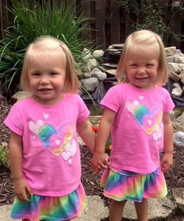 Sau 5 năm, 2 bé gái trong bức ảnh cặp song sinh nắm chặt tay nhau chào đời từng gây bão mạng xã hội giờ đã lớn khôn, có một điểm kỳ lạ khó giải thích nổi-14