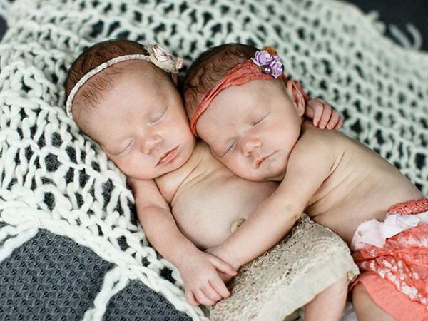Sau 5 năm, 2 bé gái trong bức ảnh cặp song sinh nắm chặt tay nhau chào đời từng gây bão mạng xã hội giờ đã lớn khôn, có một điểm kỳ lạ khó giải thích nổi-7