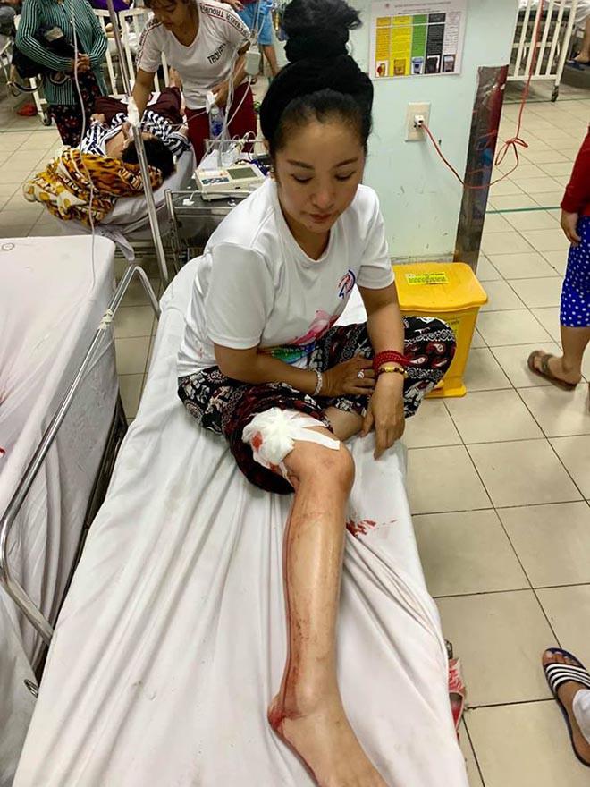 Danh hài Thúy Nga bị tai nạn, máu chảy đầm đìa phải cấp cứu-2