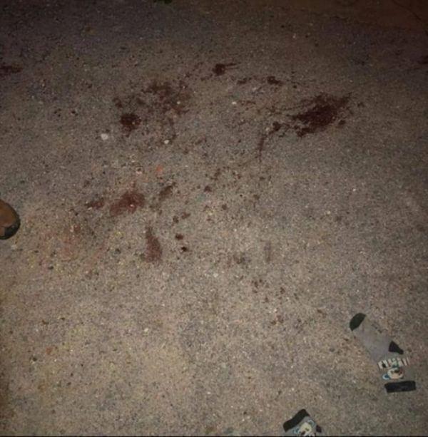 Đàn chó 10 con lao vào cắn chết bé trai 7 tuổi ở Hưng Yên-1