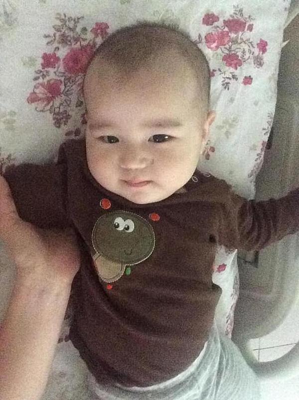 Đưa con trai 10 tháng tuổi đến bệnh viện điều trị bệnh hô hấp, bố mẹ đau đớn thấy cơ thể con bị hủy hoại vì sai lầm khủng khiếp của y tá-1
