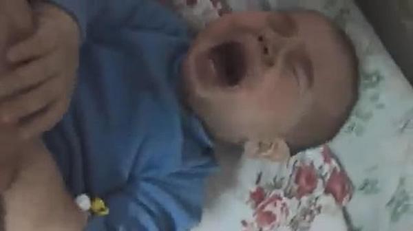 Đưa con trai 10 tháng tuổi đến bệnh viện điều trị bệnh hô hấp, bố mẹ đau đớn thấy cơ thể con bị hủy hoại vì sai lầm khủng khiếp của y tá-2