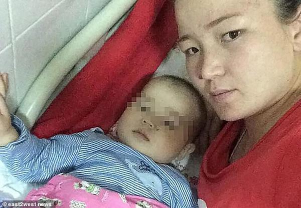 Đưa con trai 10 tháng tuổi đến bệnh viện điều trị bệnh hô hấp, bố mẹ đau đớn thấy cơ thể con bị hủy hoại vì sai lầm khủng khiếp của y tá-3