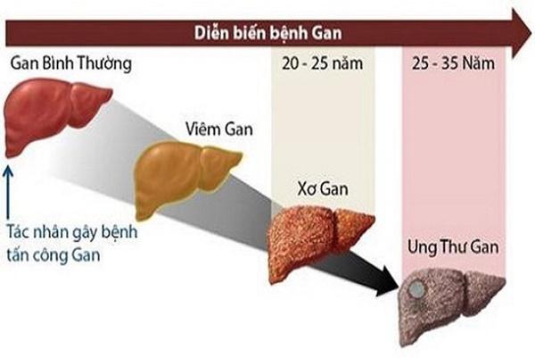 Sư tử Kim Loan - học trò của cố nghệ sĩ Trần Lập qua đời vì ung thư gan: Dấu hiệu nhận biết căn bệnh gây tử vong cao này-3