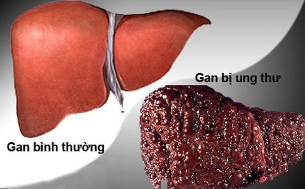 Sư tử Kim Loan - học trò của cố nghệ sĩ Trần Lập qua đời vì ung thư gan: Dấu hiệu nhận biết căn bệnh gây tử vong cao này-4