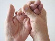 Tay bị tê có thể là do những bệnh nghiêm trọng này: Nếu không may bị thì bạn phải đi khám ngay