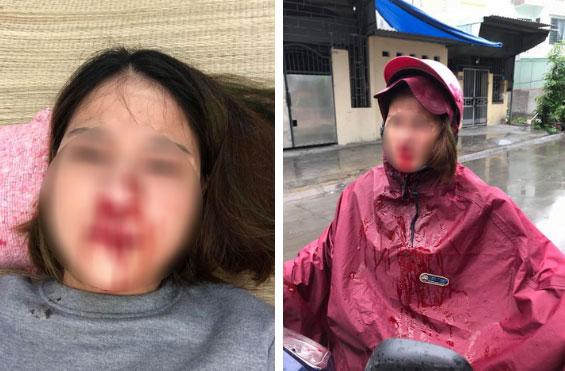 Vụ phản bội hot nhất MXH: Vợ đi mót rau nuôi chồng thuở hàn vi, có nhà lầu xe hơi thì chồng cặp bồ, đánh vợ đổ máu-2