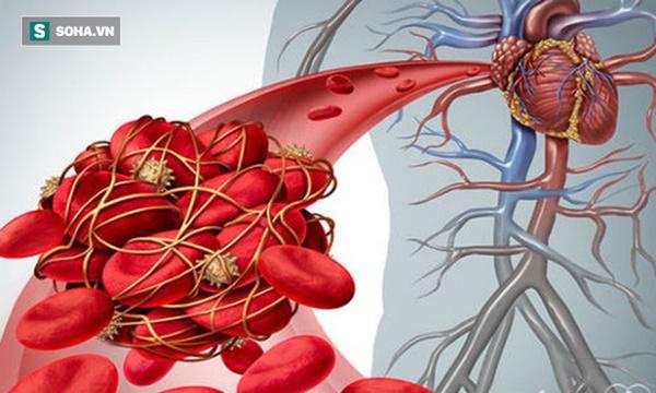 5 triệu chứng ngầm cảnh báo về bệnh huyết khối: Hậu quả nặng nề có thể bạn chưa biết-1