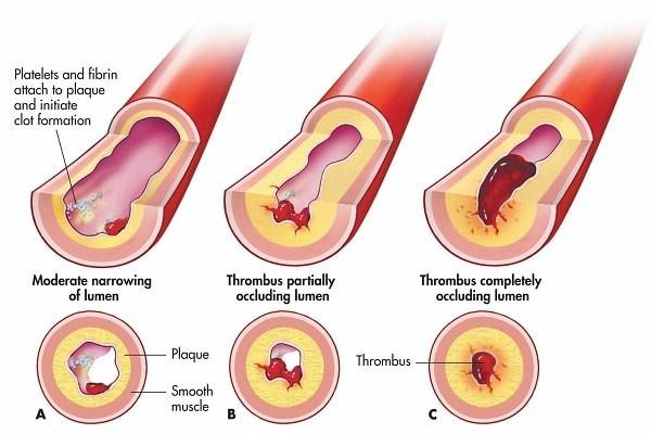 5 triệu chứng ngầm cảnh báo về bệnh huyết khối: Hậu quả nặng nề có thể bạn chưa biết-2