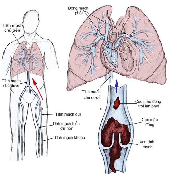 5 triệu chứng ngầm cảnh báo về bệnh huyết khối: Hậu quả nặng nề có thể bạn chưa biết-3