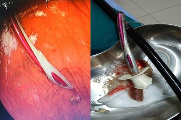 Hy hữu: hóc xương cá dùng bàn chải đánh răng giải cứu rồi nuốt cả vào bụng-1