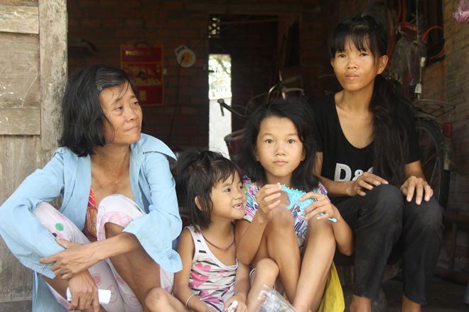 Mẹ khờ khạo sinh 2 con gái đều không biết bố là ai, nhìn bé út bao người xót xa-1
