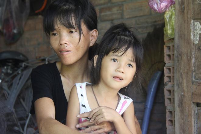 Mẹ khờ khạo sinh 2 con gái đều không biết bố là ai, nhìn bé út bao người xót xa-3