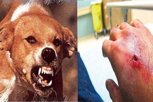 Mắc bệnh dại tử vong 100%, 4 bước cần làm ngay khi bị chó cắn-1