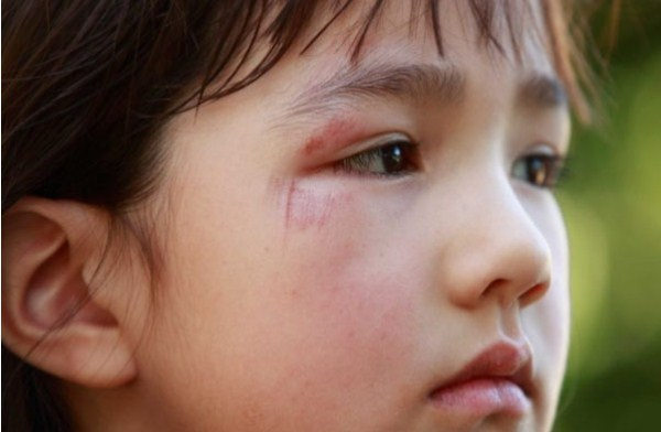 6 cách nhận biết con bị bắt nạt tại trường-3