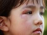 Nếu con bị bạn bắt nạt hay đánh đập ở trường thì đây là điều các bậc phụ huynh nên làm thay vì bảo trẻ mách cô-5