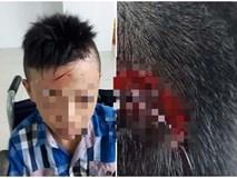 Vĩnh Long: Xác minh thông tin nam sinh lớp 7 bị bạn đánh chảy máu đầu, ngất xỉu 2 lần nhưng nhà trường không đưa đi cấp cứu