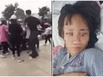 Mẹ của nữ sinh bị hành hung ở Hạ Long: Con tôi từng đánh nhau với nhóm kia nhưng đã xin lỗi rồi, không ngờ bị đánh lại-3