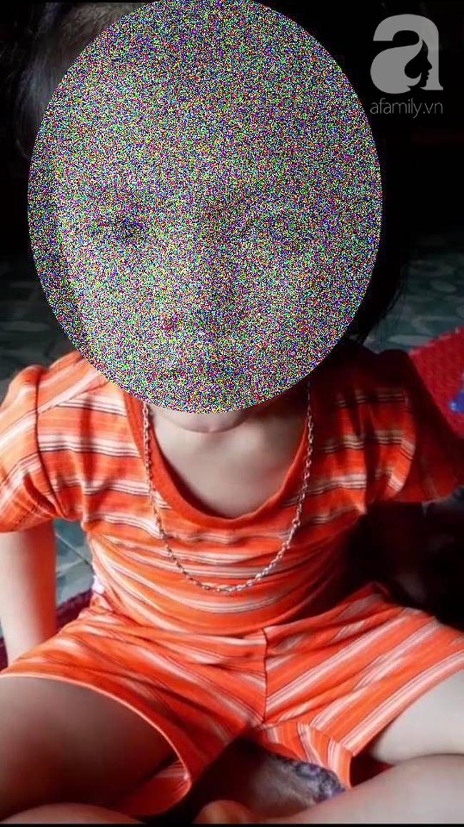 Vụ cô giáo nhét chất bẩn vào vùng kín bé gái 5 tuổi ở Thái Nguyên: đối tượng là cô ruột, nghi do mâu thuẫn chia tài sản-2
