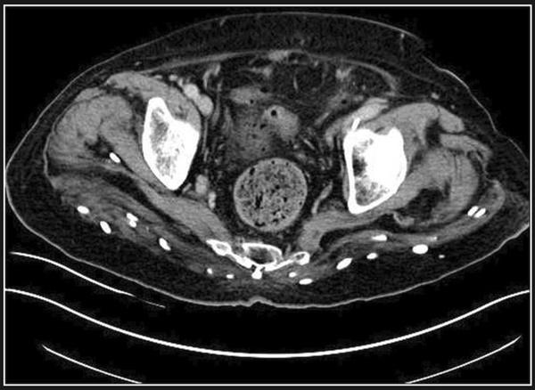Ảnh kinh dị: Hàng trăm trứng sán dây trong não và cơ thể bệnh nhân-4