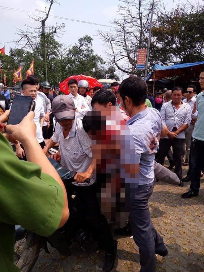 Vụ 7 người đi vệ sinh trả 5.000 đồng, đánh trọng thương chủ nhà: Bàng hoàng lời kể của nạn nhân-1