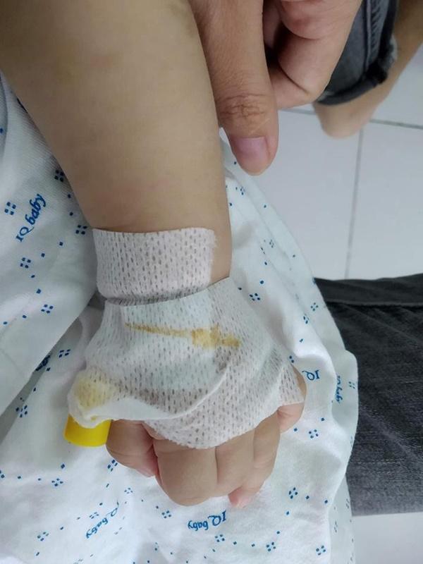 4 tháng sau tiêm phòng, mẹ tá hỏa nhìn thấy hạch mưng mủ, phải đưa con đi phẫu thuật gấp và những kinh nghiệm sâu sắc gửi đến các mẹ khác-4