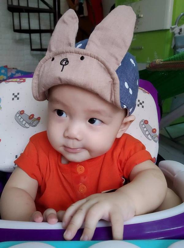 4 tháng sau tiêm phòng, mẹ tá hỏa nhìn thấy hạch mưng mủ, phải đưa con đi phẫu thuật gấp và những kinh nghiệm sâu sắc gửi đến các mẹ khác-7