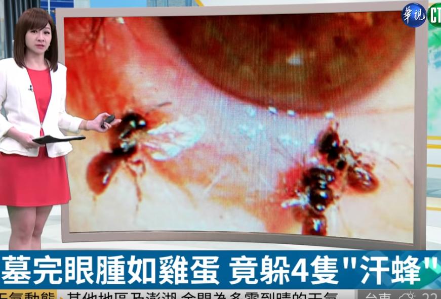 4 con ong sống ký sinh trong mí mắt cô gái, uống nước mắt vật chủ để sinh tồn-1