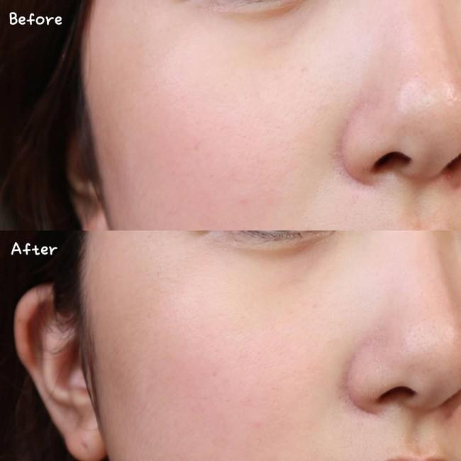 Làn da từ đầy tỳ vết thành mịn đẹp xuất sắc nhờ phương pháp peel da, nhưng không chú ý những điều sau thì hỏng bét-2