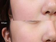 Làn da từ đầy tỳ vết thành mịn đẹp xuất sắc nhờ phương pháp peel da, nhưng không chú ý những điều sau thì 'hỏng bét'