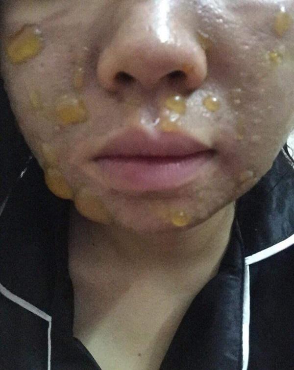 Kinh hãi hình ảnh cô gái bị nổi bóng nước khắp mặt vì làm đẹp: Chuyên gia cảnh báo điều quan trọng trước khi peel da-2