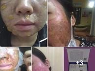 Kinh hãi hình ảnh cô gái bị nổi bóng nước khắp mặt vì làm đẹp: Chuyên gia cảnh báo điều quan trọng trước khi peel da